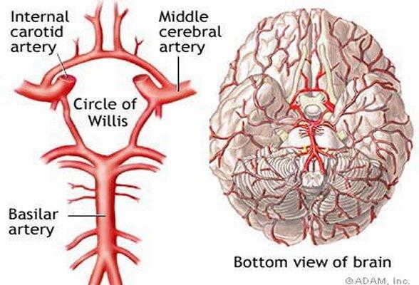 Cefaleia e Enxaqueca: Basilar